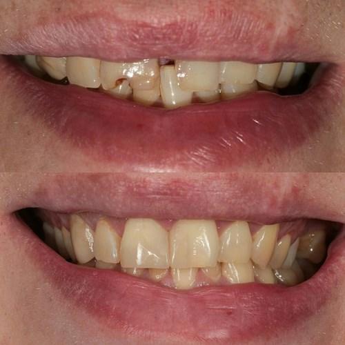 Реставрация зубов томск